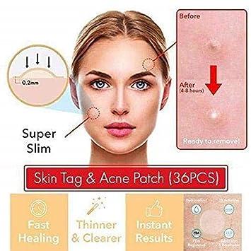 Amazon.com: Mosteeka The Magic Skin - Parche para eliminar ...