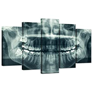 Hello Artwork Modern 5 Panel Canvas Wall Art X-Ray Dental Tooth Oral Panoramic The Picture Teeth Decay Print for Dental Room Stretched And Framed For Living Room Ready To Hang (40x24inch)
