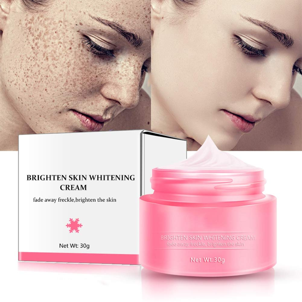 Ofanyia Freckles Removal Cream Remove Spots Treatment Skin Care Brightening Whitening Facial Cream