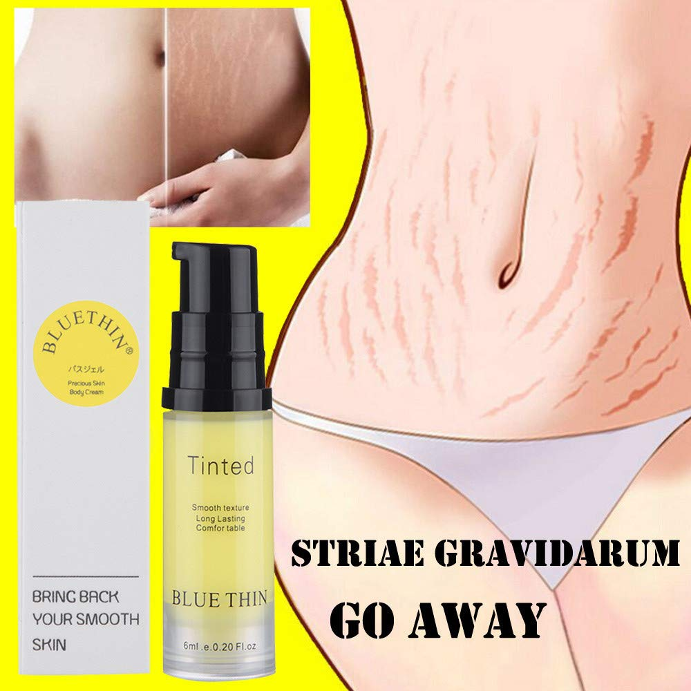Unpara BLUETHIN 6ML Removal Acne Scar Stretch Marks Cream Fat Scar Striae Gravidarum Treatment (Yellow)