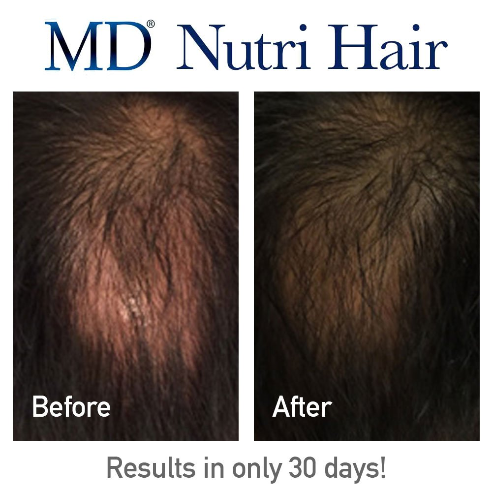Amazoncom  MD Nutri Hair Growth Supplement With Biotin Capsules - How much biotin to take for hair growth