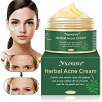Crema Antiacne, Acné Crema, Anti Acne, Acne Tratamiento, Acne Cream, Reducir los Puntos negros, Equilibrar el Agua y el…
