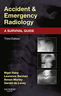 amazon com the chest x ray a survival guide ebook gerald de lacey rh amazon com chest x ray survival guide pdf download chest x ray survival guide pdf free download