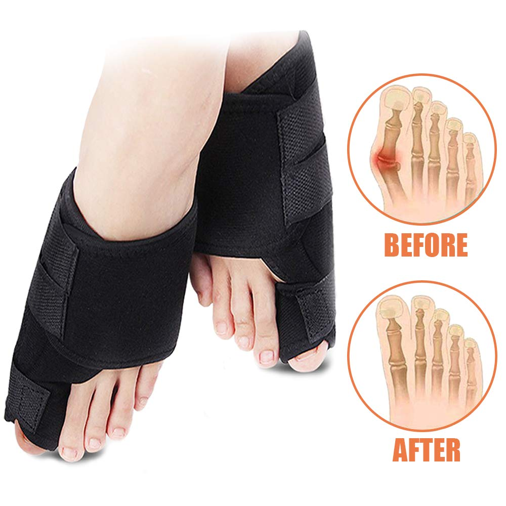 Bunion Corrector - Bunion Pain Relief - Orthopedic Big Toe Joint Brace - Hammer Toe Splint Spacers Straightener Support Separators Protector Toes - Hallux Valgus Aid Surgery Treatment for Men & Women by FanProd