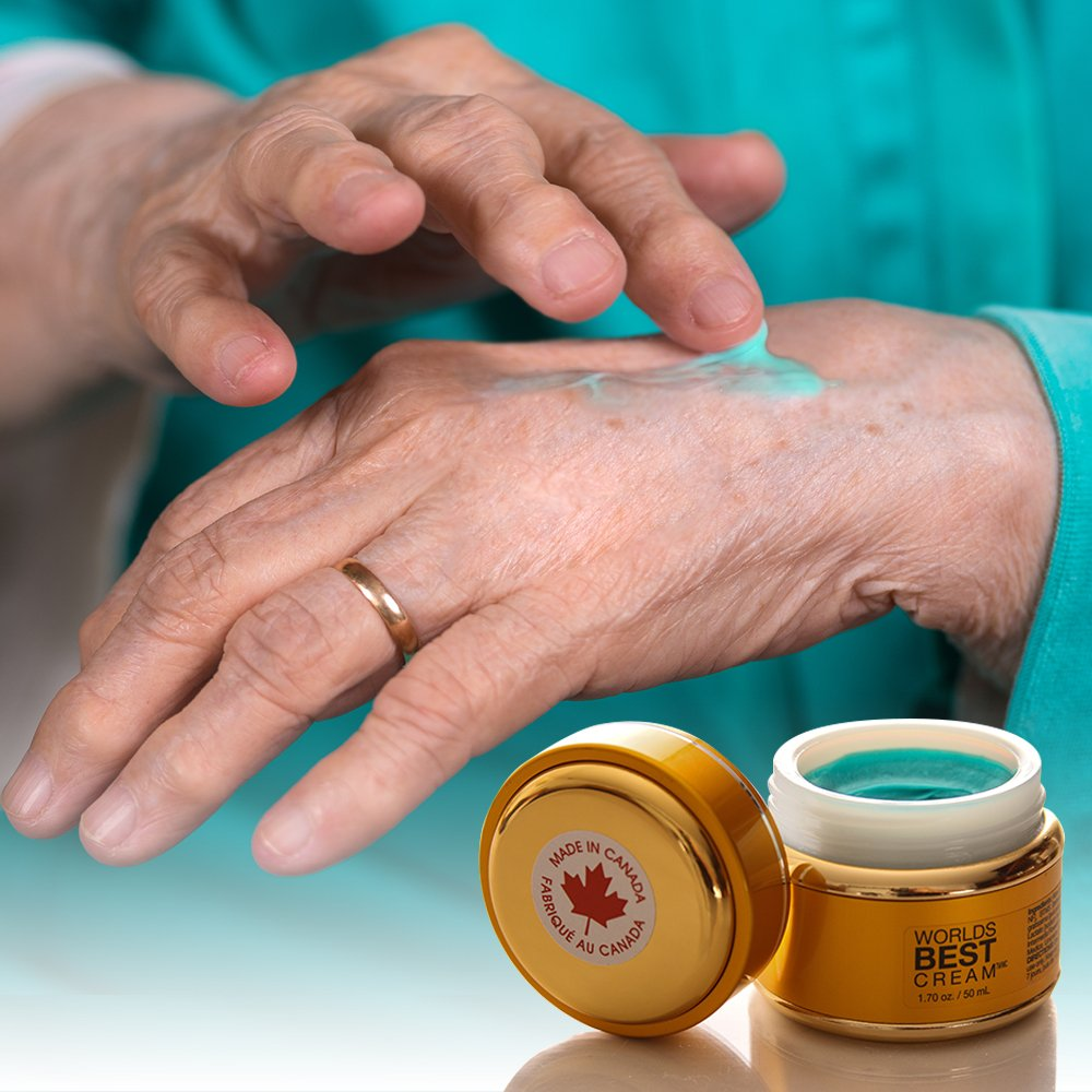 Sufferers wear copper jewelry in the hopes of easing symptoms - Worlds Best Cream Premium Arthritis And Sore Muscle Pain Relief Cream Using The Power Of Copper And Natural Oils Amazon Ca Health Personal Care