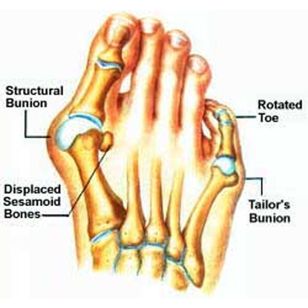 Amazon.com: Bunion Corrector Sleeve with Gel Pad – Toe Separator ...