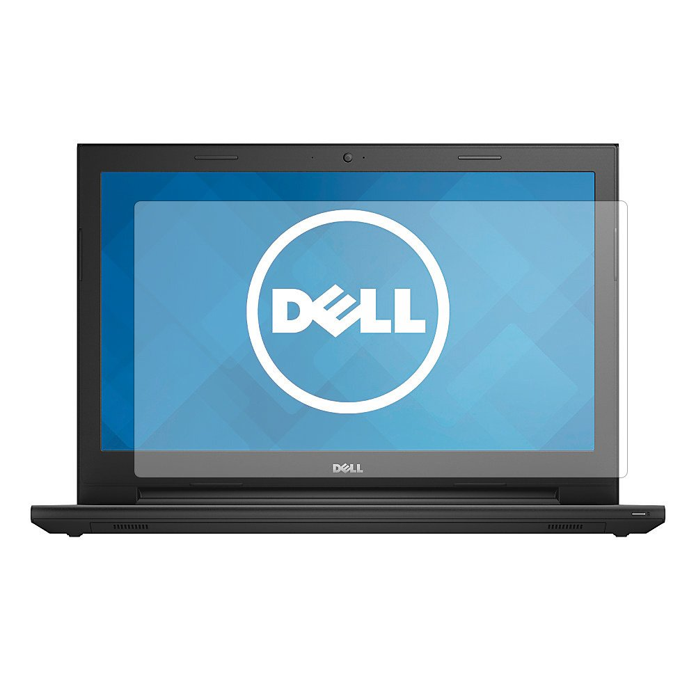 PcProfessionalスクリーンプロテクターfor Dell Inspiron 15 3000 Series 15.6