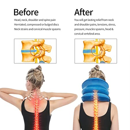 health cervical neck traction device fda registered inflatable