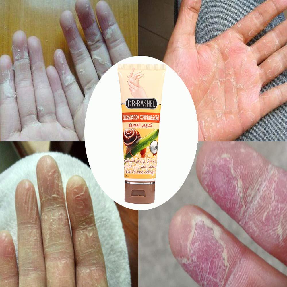 3f974d898 Generic Snail Serum Repair Hand Cream Nourishing Hand Care Anti Chapping Anti  Aging Whitening Firming Hand Cream Skin Care Beauty: Amazon.in: Beauty