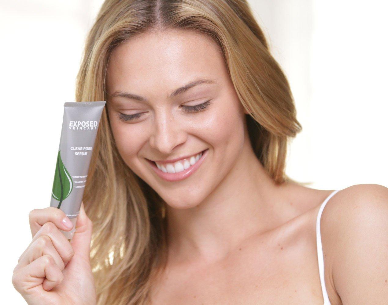 Exposed acne treatment basic kit