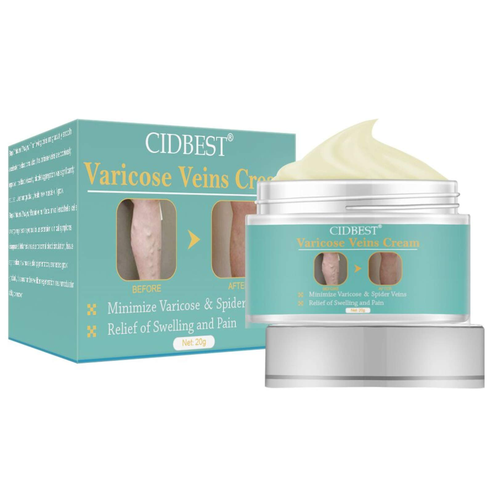 Varicose Veins Cream, Varicose Vein Treatment, Spider Vein Treatment for Legs, Improve Blood Circulation, Tired and Heavy Legs Fast Relief…