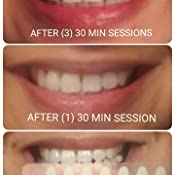 White Gums After Teeth Whitening