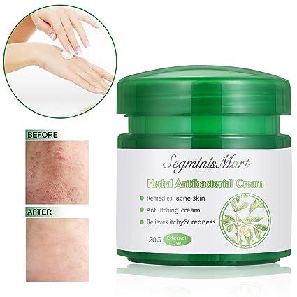 Potente suero de vitamina C para la cara con suero de ácido hialurónico, anti envejecimiento y anti arrugas ...