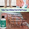 Antifungal Soap with Tea Tree Oil, Helps Treat & Wash Away Athletes Foot, Ringworm, Nail Fungus, Jock Itch, Body Odor & Acne. Antibacterial Defense Against Common Fungal and Bacteria Related Skin Irritations 9oz.