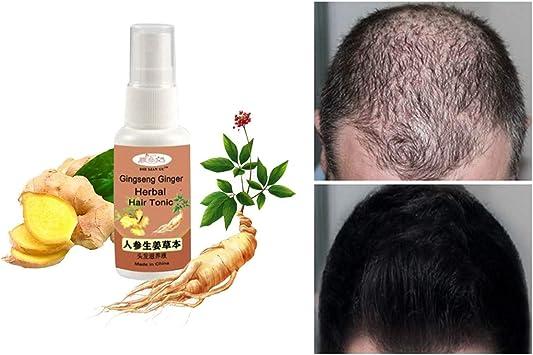 Amazon.com: ErYao - Sérum para crecimiento del cabello de ...