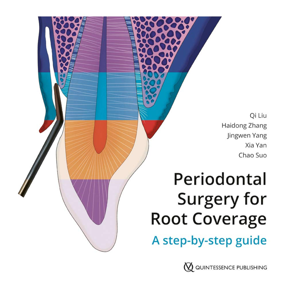 Periodontal Surgery for Root Coverage: A step-by-step guide