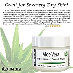 Aloe Vera Dry Skin Cream - Best Remedy Skin Repair Cream by Derma-nu - Organic Treatment for Face & Body - Treatment for Psoriasis and Eczema Therapy - Non-greasy and Fast Absorbing - 8oz