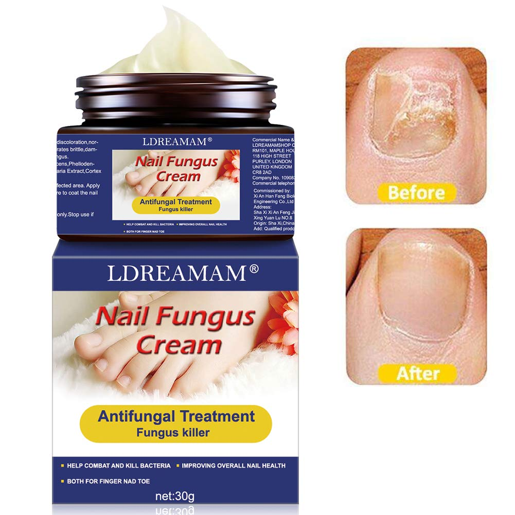 Fungus Treatment Cream,Nail Fungus Cream,Foot Fungus,Fungus Stop,Anti fungal Nail,Restores the healthy appearance of nails discolored or damaged by nail fungus by LDREAMAM
