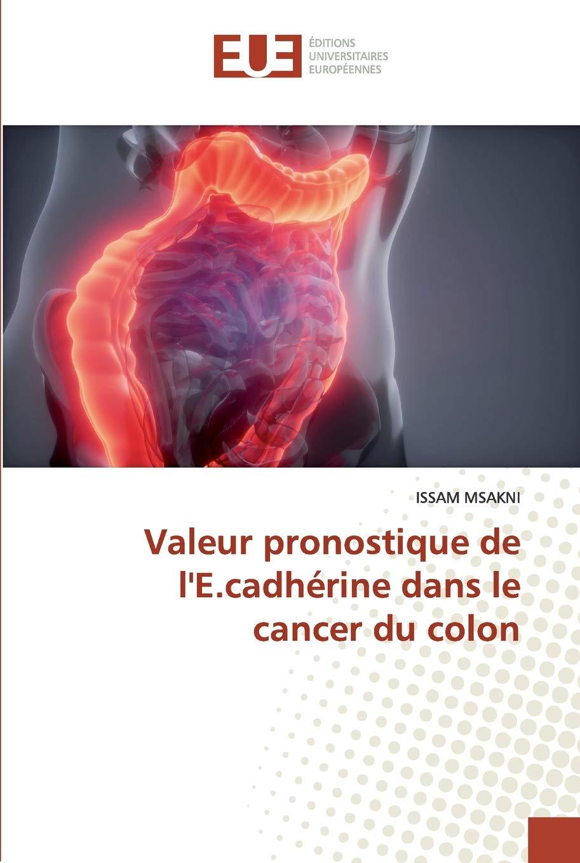Valeur Pronostique De L E Cadherine Dans Le Cancer Du Colon French Edition Msakni Issam 9786139572878 Amazon Com Books