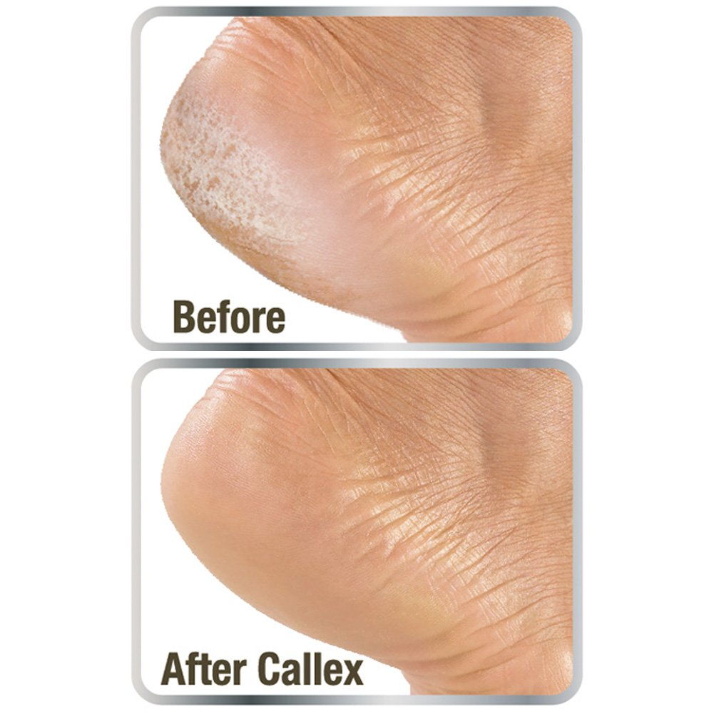 Callex Callus Foot And Heel Ointment – Smoothes Softens Hard Cracked Feet