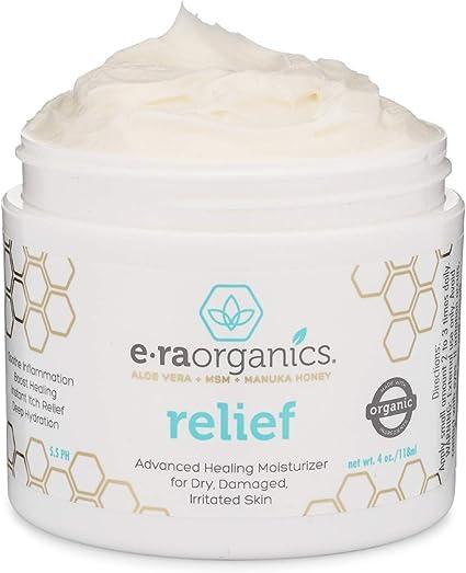 Crema para Psoriasis y Eczema Era Organics de 120ml – Tratamiento ...