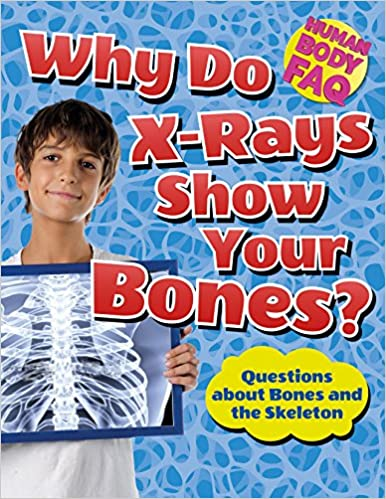 Descargar Libro It Why Do X-rays Show Your Bones?: Questions About Bones And The Skeleton Ebooks Epub