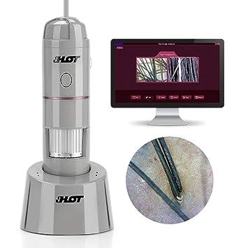 Analizador de la piel del microscopio digital del detector del cuero cabelludo de la piel con la c/ámara 200MP y USB OTG