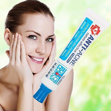 Crema Antiacne, Acné Crema, Acne Tratamiento, Reducir los Puntos negros, Equilibrar el Agua y el Aceite, la Crema Contra el Acné Espinilla Regenera la piel, 30 g