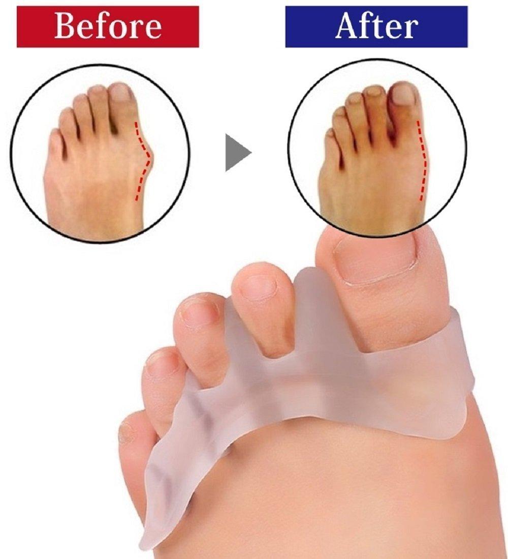 Highfive 2 pcs Toe Separator Toe Stretchers Used for Sport Activities, Yoga Practice Relieve Pain of Hallux Valgus