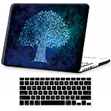 Icasso Macbook Pro 13 Retina Hard Cases - Best Reviews Guide