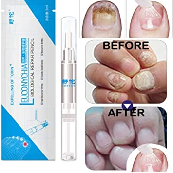 Amazon.com : Liobaba 3ML Fungal Nail Treatment Pen Onychomycosis ...