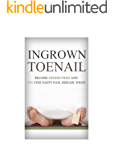 Foot Pain: Ingrown Toenail: How To Become Stress Free And Easily Cure This Nasty Nail Disease Today From The Comfort Of Your Own Home (Foot Pain, Foot Problems, Foot Pain Relief, Foot Reflexology)