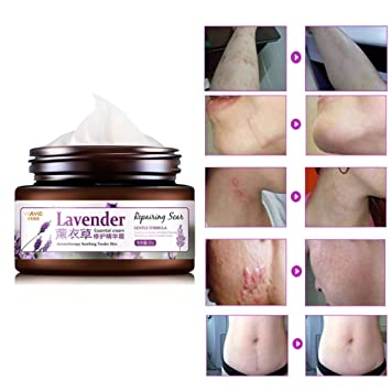 Amazon Com Best Scar Removal Cream Jojoba Seed Oil Organic Natural Herbal Formula Advanced Treatment For Face Body Old New Scars From Cuts Stretch Marks Scar Repair