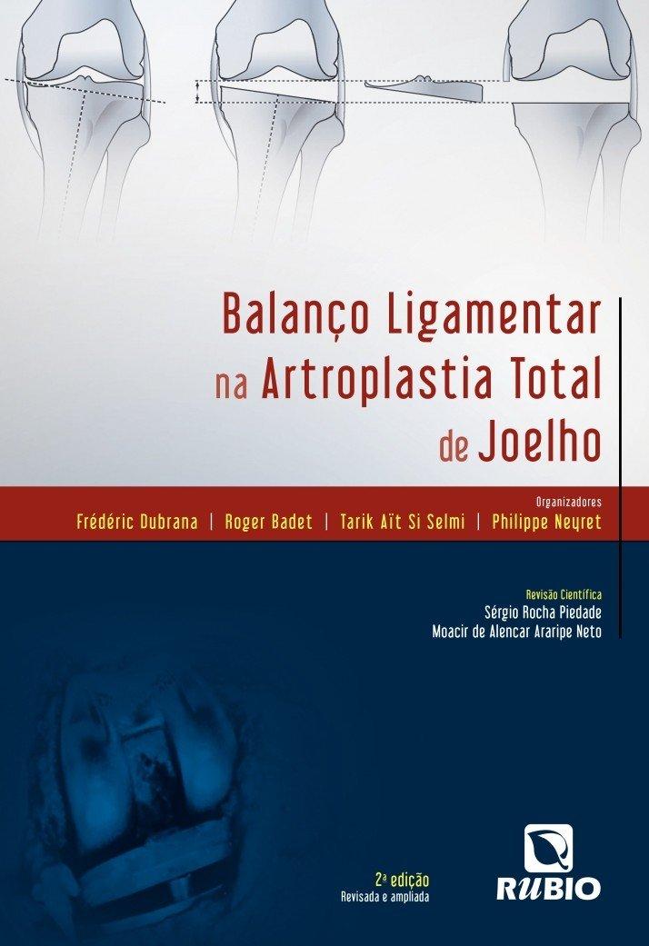 Balanço Ligamentar na Artroplastia Total de Joelho ebook