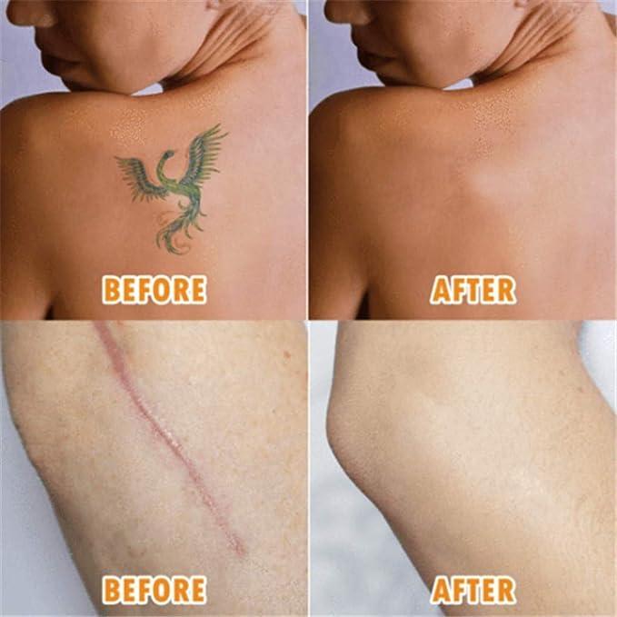 Amazon.com: Little Story – Cinta para ocultar tatuajes y ...
