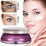 Whitening Cream, Freckle Removal Cream, Skin Lightening Cream, Armpit Whitening Cream, Whitening Lightening Skin Care Facial Cream Age Spot Melasma Underarms Private Parts 30g (Whitening Cream-30g)