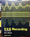 EEG Recording, M. L. Hector, 0407001360