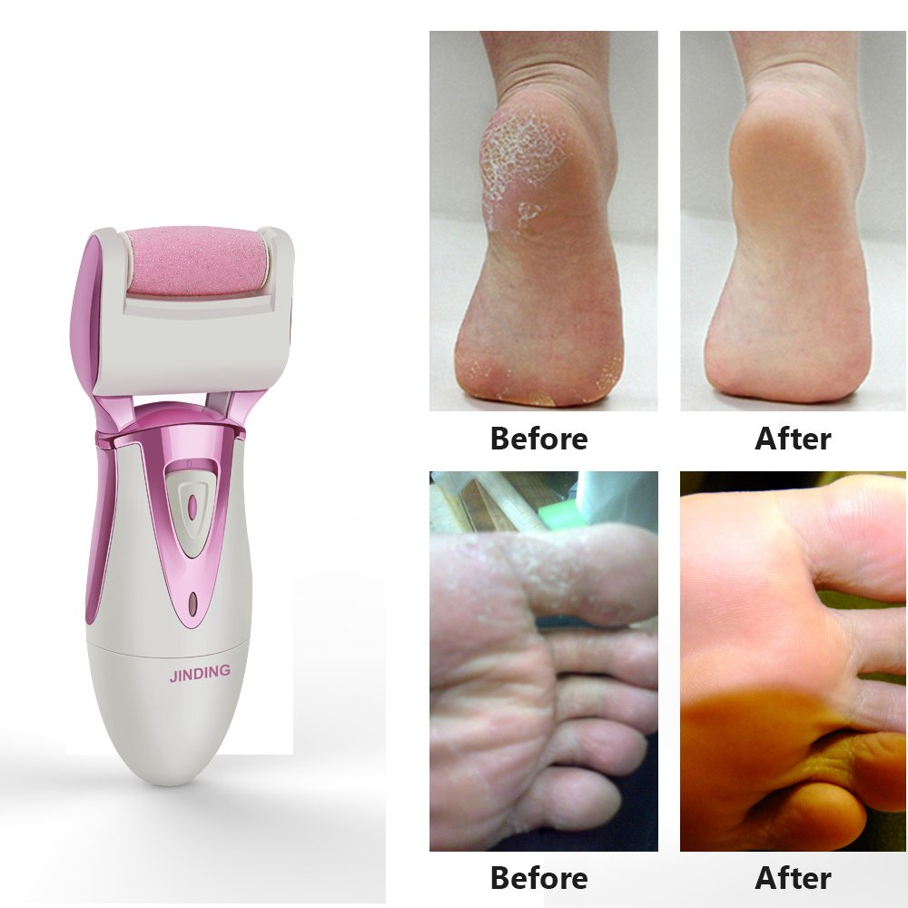 Electric Callus Remover - Rechargeable & Waterproof Foot File with Quartz Sand Remove Dead, Hard, Cracked Skin ( Rose Gold )