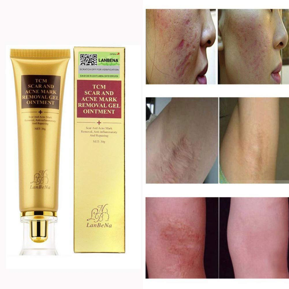 Scar and Acne Spots Mark Removal Gel Cream Face Care Acne Treatment Whitening Moisturizing Facial Cream 30ml Ofanyia