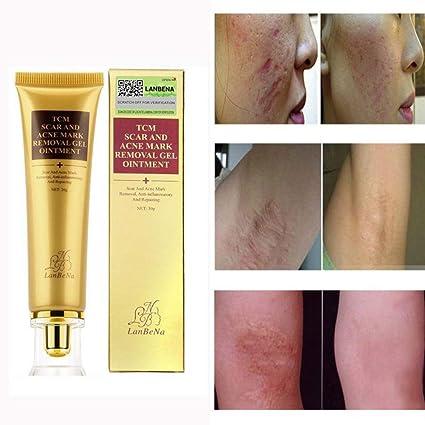 Crème gel soin visage blanchissant - Traitement de l acné du visage et des d7f6e87e9e0