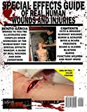 Special Effects Guide Of Real Human Wounds and
