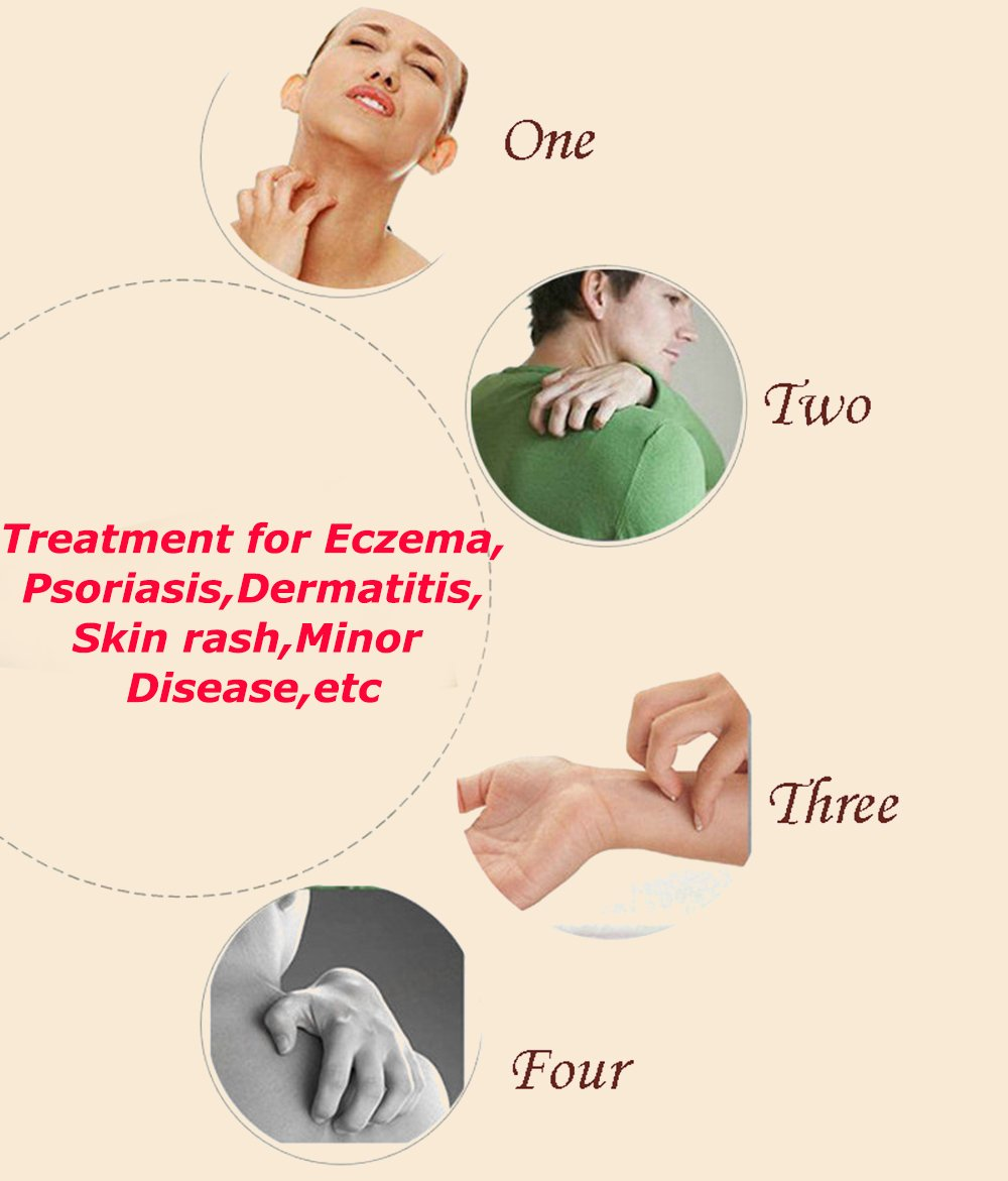 3Pcs. Antipruritic Eczema Psoriasis Cream and Dermatitis Therapy Ointments for All Kinds of Skin Herbal Medicine Patch