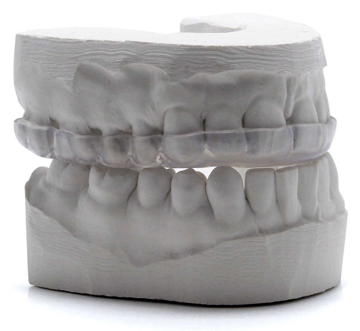 Custom Dental Night Guard for Teeth Grinding - Pro Teeth Guard. 365 Day 100% Money Back Guarantee. Size: Adult-Male. by Pro Teeth Guard (Image #2)