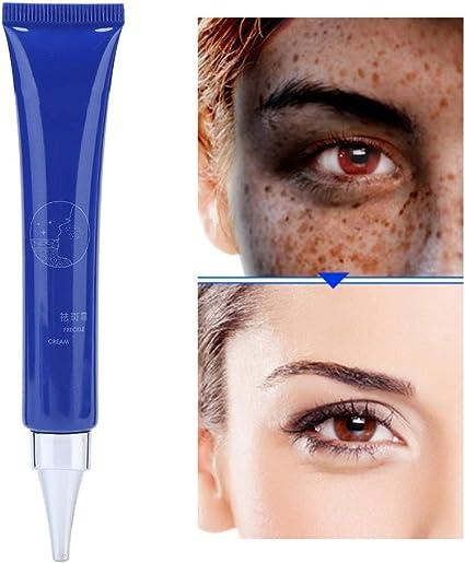 Crema para remover las pecas de la cara Aligeramiento Manchas de la edad Pecas Blanqueamiento Crema para el cuidado de la piel de la cara