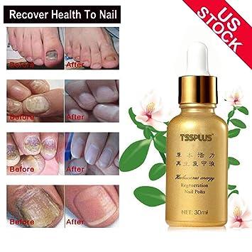 Amazon.com : TSSPLUS Nail repair cream, Toe Nail Fungus, Fungus Stop ...