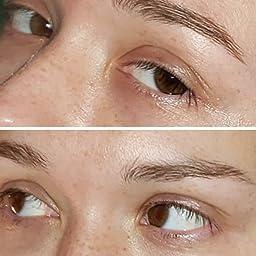 Amazon Com Customer Reviews Retinol Eye Cream Moisturizer 2 5
