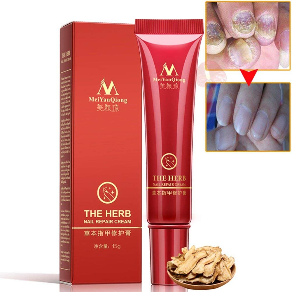 Foot Nail Cream, Angmile Nail Repair Cream Protector Skin Care Cream Nail Fungus Treatment Herb Onychomycosis Paronychia Anti Fungal(2 Pcs)