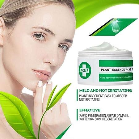 Wiivilik Esencia de la Planta Anti acné Crema Facial Que blanquea la peca Crema Quitar Melasma acné Marcas Pigmento melanina Manchas oscuras Cuidado de la Cara Suero Crema para el Rostro