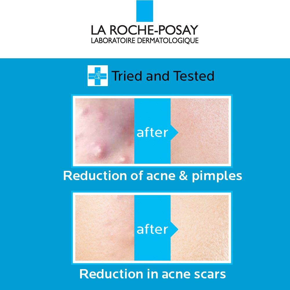 理肤泉La Roche-Posay Effaclar Duo+ 粉刺痘肌护理霜40ml
