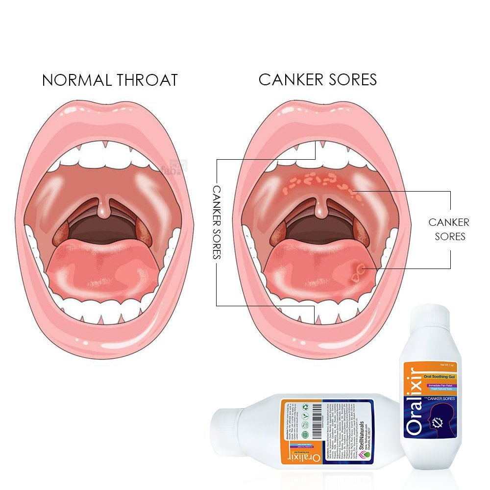 Discussion on this topic: Soothe Canker Sores, soothe-canker-sores/